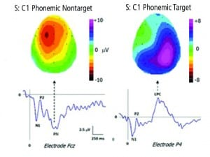 Figure 1. Topographic maps of a single listener in a phonemic detection experiment, contrasting the negative surface activity of non-target words with the positive surface activity of the target words. The two maps differ according to both polarity of the response and its locus over the surface of the skull.