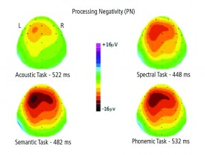Figure 3. Topographic maps of the distribution of AERP voltages across the surface of the skull for each of the four conditions of the experiment. Warm colors denote negativity, cold colors positivity. PN negativity is maximal over the left fronto-central areas in each condition. PN negativity is smallest in the noise-burst condition, intermediate for the spectral condition, and greatest for the phonemic and semantic conditions.