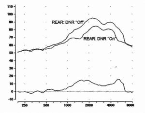Figure 1. The real-ear aided response (REAR) using a 65-dB speech noise signal for DNR-Off vs DNR-On. The lower curve on the chart shows the frequency-specific magnitude of the DNR (the difference between the two REAR measures). Measurements taken for an instrument which had relatively equal DNR magnitude across frequencies when a closed fitting was employed. Adapted from Mueller & Ricketts.3