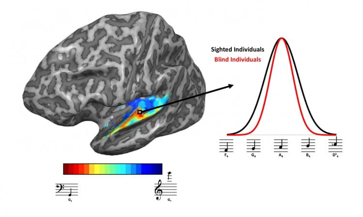 Researchers Identify Brain Regions in Blind Individuals Responsible for Sharpened Auditory Function