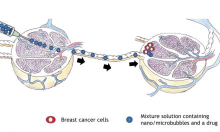 Researchers Deliver Breast Cancer Drug Via Sound Waves