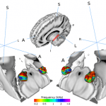 Speech Processing is Complex Before Reaching Cerebral Cortex, Researchers Find