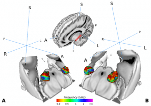 Visualization of the medial geniculate body (MGB) in the brain of human test persons. The MGB is part of the auditory pathway. It is organized in such a way that certain sections represent certain sound frequencies. The study shows that the part of the MGB that transmits information from the ear to the cerebral cortex is actively involved in human speech recognition.
