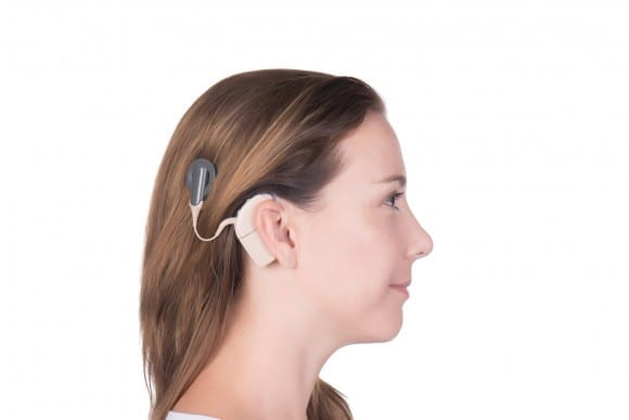 Speech-in-Noise Training May Help Speech Perception for Cochlear Implant Users
