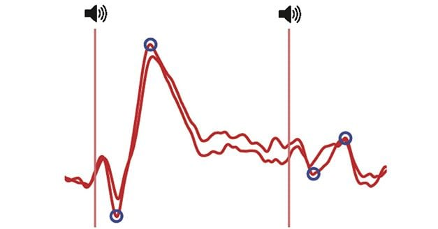 Researchers Study Mechanism behind Auditory Sensory Gating