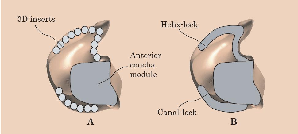 custom hearing aid shell manufacturing