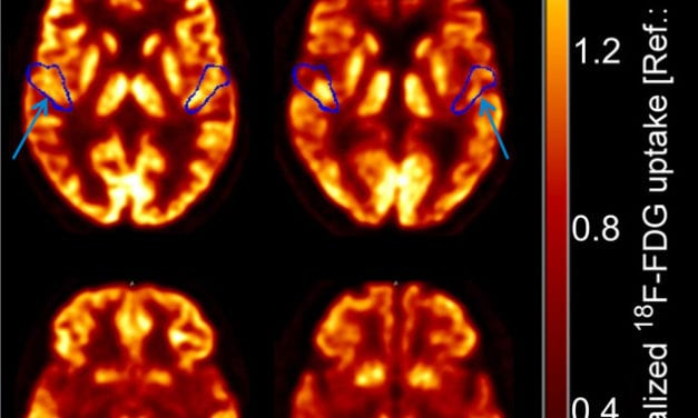 High-Resolution PET/CT Imaging Assesses Brain Stem Function in Patients with Hearing Impairment