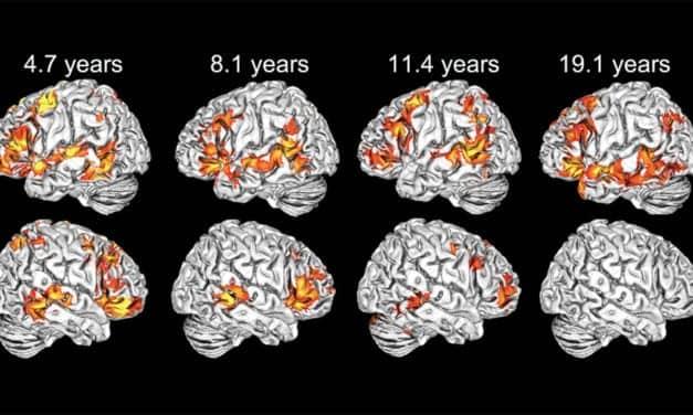 Research Shows Children Use Both Brain Hemispheres to Understand Language