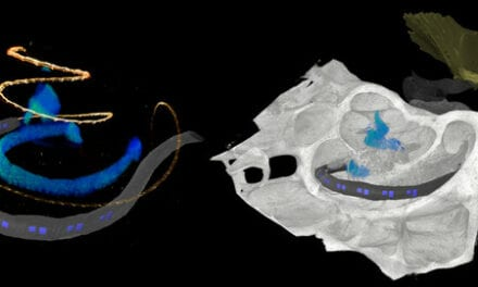 Improved Hearing with Optical Cochlear Implants