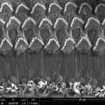 UPenn Researchers ID New Cause of Hearing Loss
