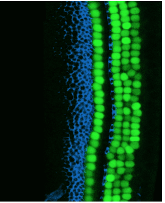 Latent Regenerative Potential of Inner Ear Sensory Cells