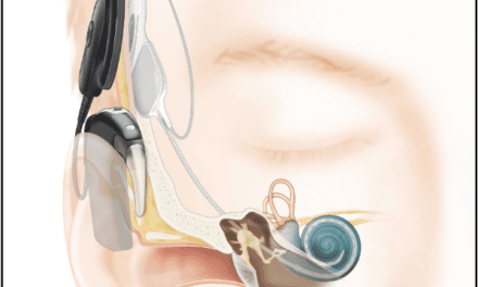 When Is an Implantable Hearing Solution Appropriate?